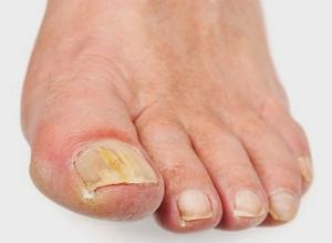 cara ampuh mengobati jamur kuku di kaki