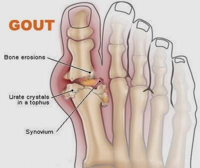 Atasi penyakit gout dengan vitamin Shaklee