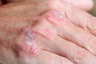 Como es la psoriasis pustular