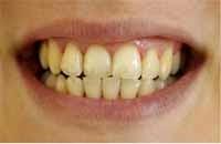 dientes sucios mal aliento