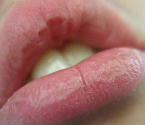 Remedios caseros labios resecos.