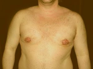 one stage gynecomastia surgery