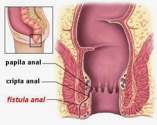 anal fistula forums