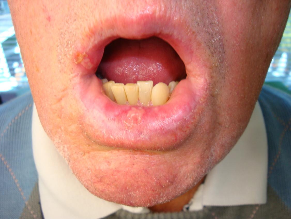 Leukoplakie: aandoening van het slijmvlies in de mond ...
