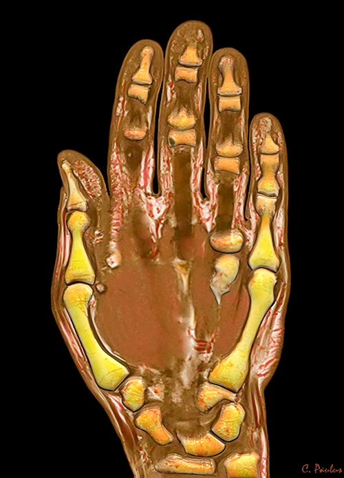 3-D HD Color MRI of the Hand