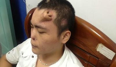 Pria Asal China Miliki Hidung di Atas Dahi