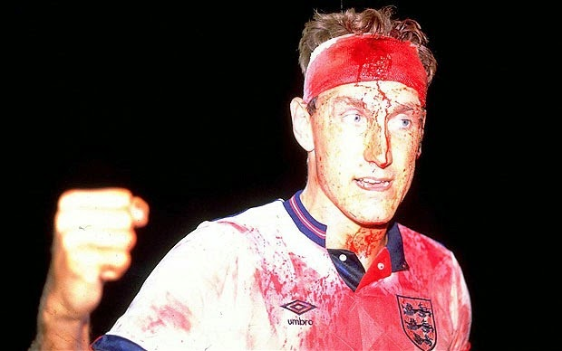 Terry Butcher Head Injury Against Sweden