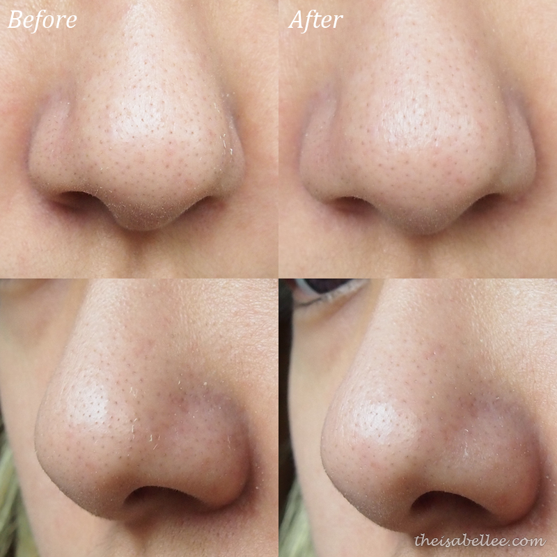 Before and after Cettua Charcoal Silky & Clear Nose Strip