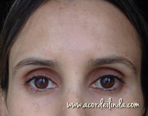 Como livrar-se de pigmentary nota o remédio de gente