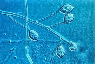 Alga dan Water Mold : Struktur, Sel, Contoh, Ciri-ciri ...