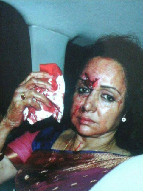 Hema Malini meets with an accident,Hemamalini accident Videos,Hema Malini Accident Videos,Hema Malini accident Videos,Hema Malini met with Accident Videos,Hema Malini accident gallery,Hema Malini accident in Rajasthan Videos,Hema Malini accident Real Videos,Hema Malini  injuries Videos,Hema Malini injured,Hema Malini accident in Jaipur,