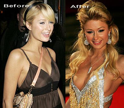 Jessica simpson boobs