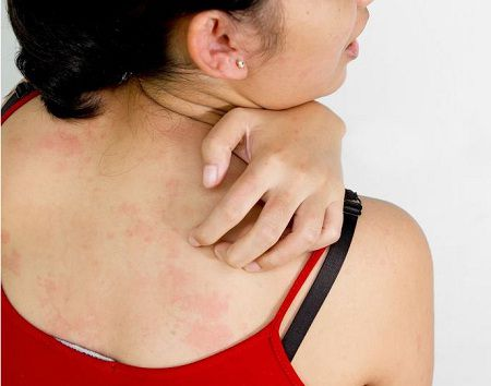 Best Medicines for Rashes: Natural Ways of Treatment
