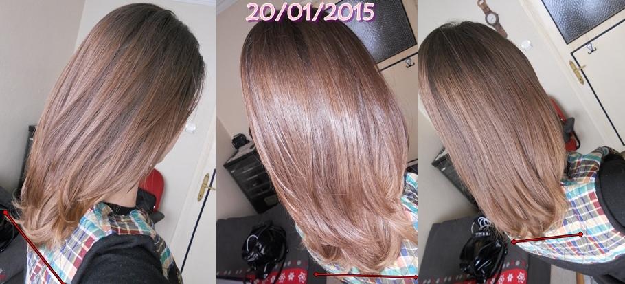 Sinameki-Kürü-Saç-Uzatma-İkinci-hafta-fotoğrafı