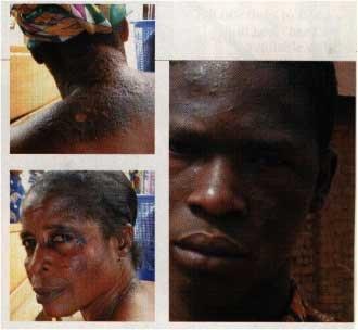 do black people get skin cancer
