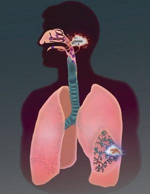 Makanan yang menyembuhkan penyakit tbc secara alami