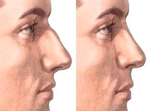 Nariz de un hombre antes y después