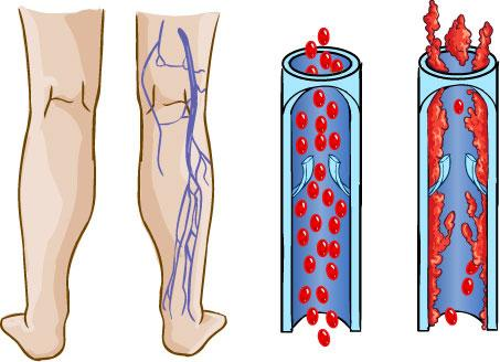 أسباب الإصابة بالدوالى...وطرق العلاج