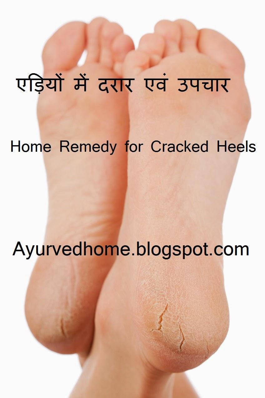 Crack In Heels And Treatment , एड़ियों में दरार एवं उपचार,  Adio ka Fatna or Upchaar