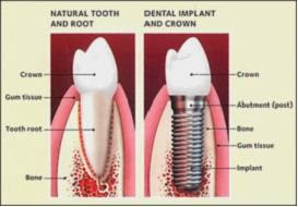 Cosmetic Dentistry Arizona