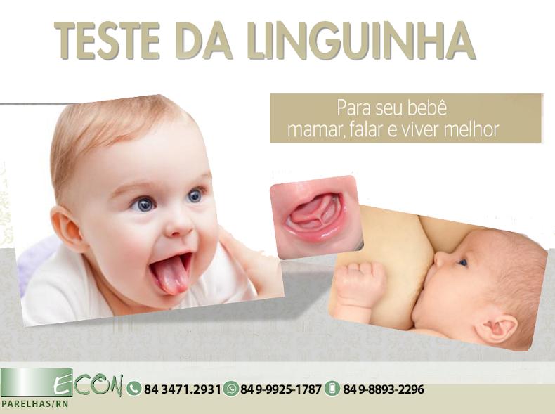 TESTE DA LINGUINHA/ECON