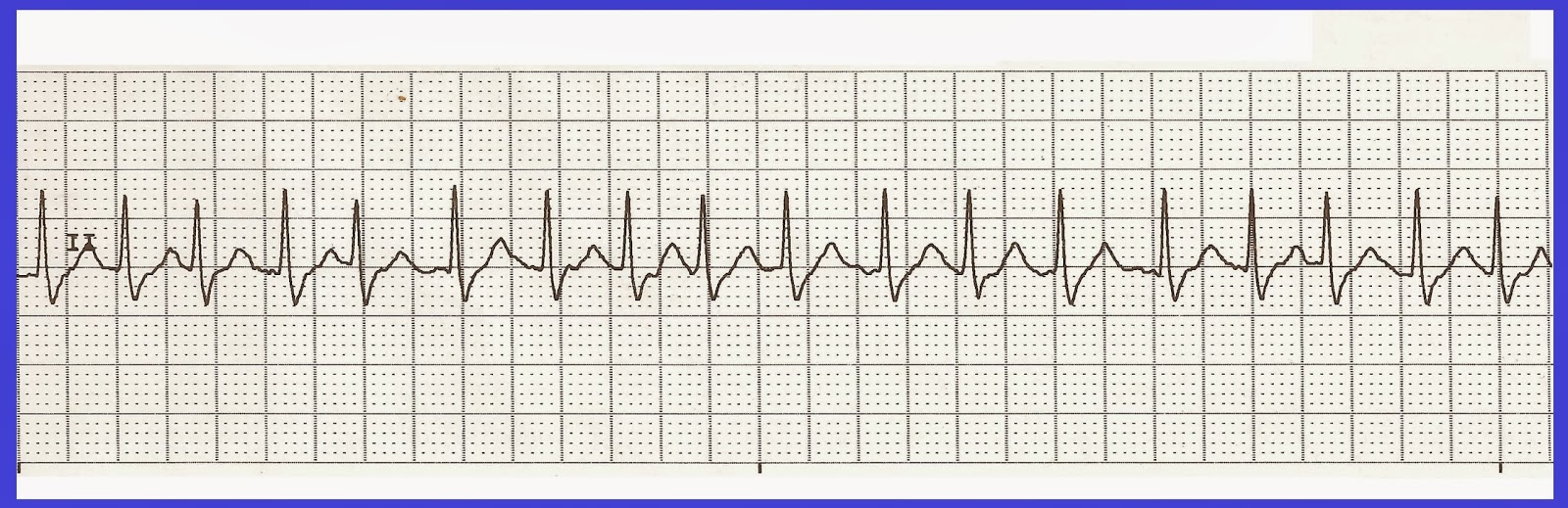 Impertinent image in ekg practice strips printable