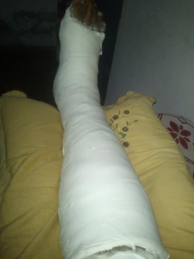 Being Blogger Broken Leg