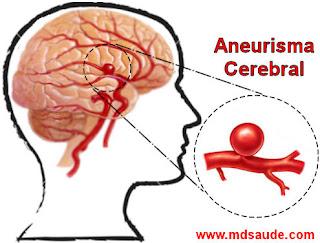 Aneurisma cerebral sacular