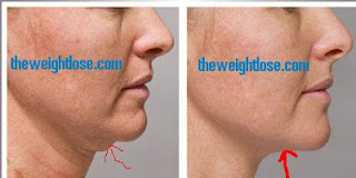 lose fat from face,face fat lose tips