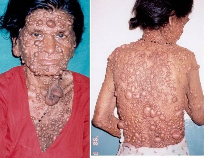 la neurofibromatosis