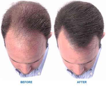 Cara menumbuhkan rambut botak dengan bahan alami dan ramuan tradisional