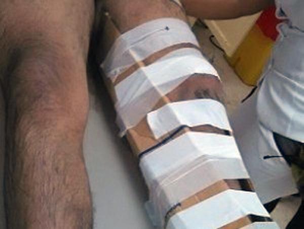 Motoconchista suicida sobrevive tras lanzarse de un puente en Moca por embargo económico