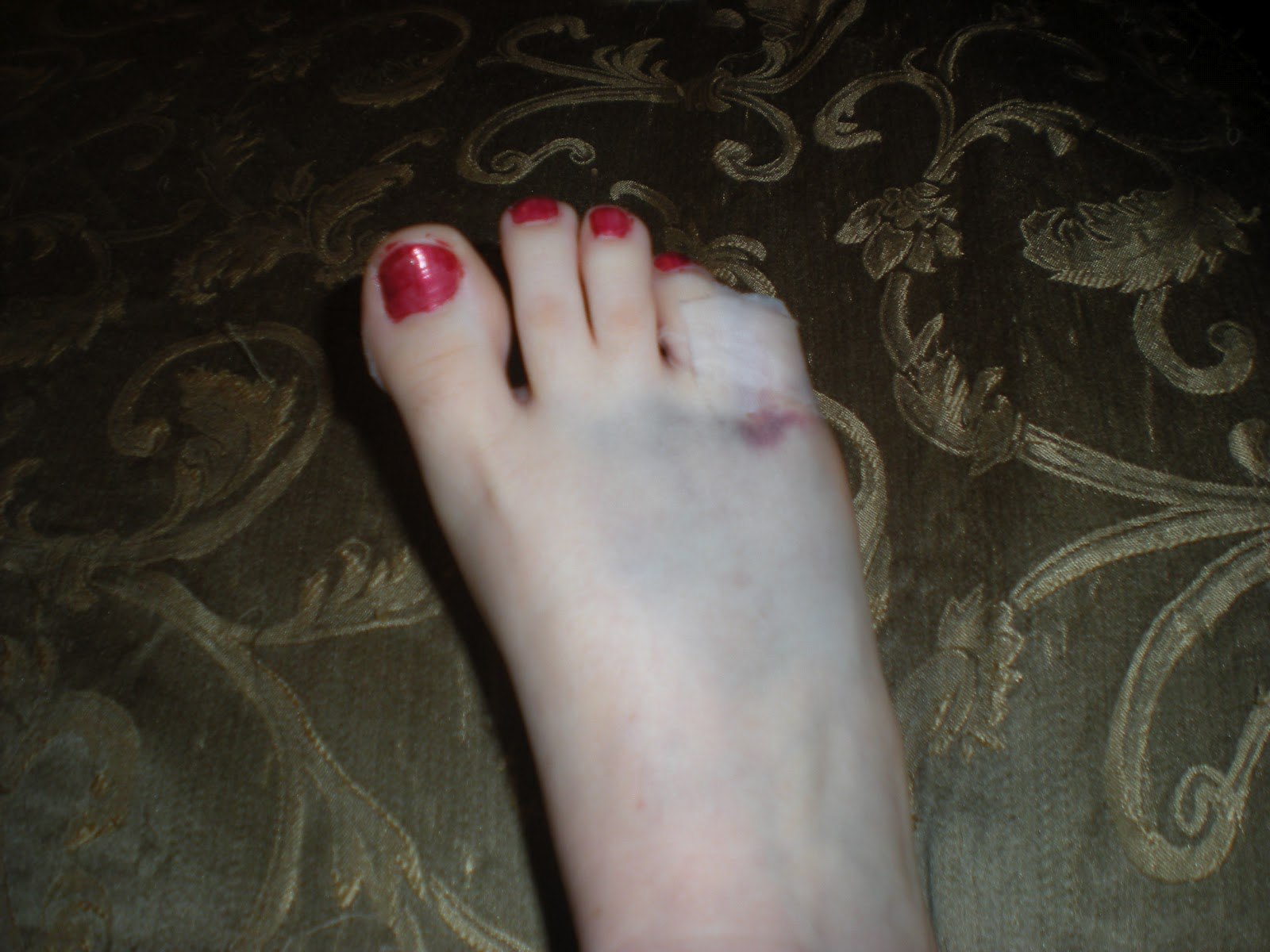 driggers diggs broken toe