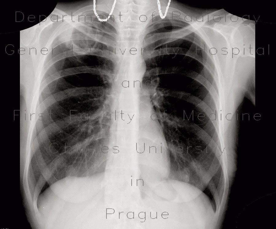 Obat Tradisional Penyakit TBC ( Tuberkulosis)