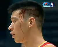 Jeremy Lin gets nasty cut after banging heads with Larry Sanders