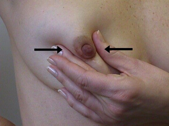 nipple squeezer