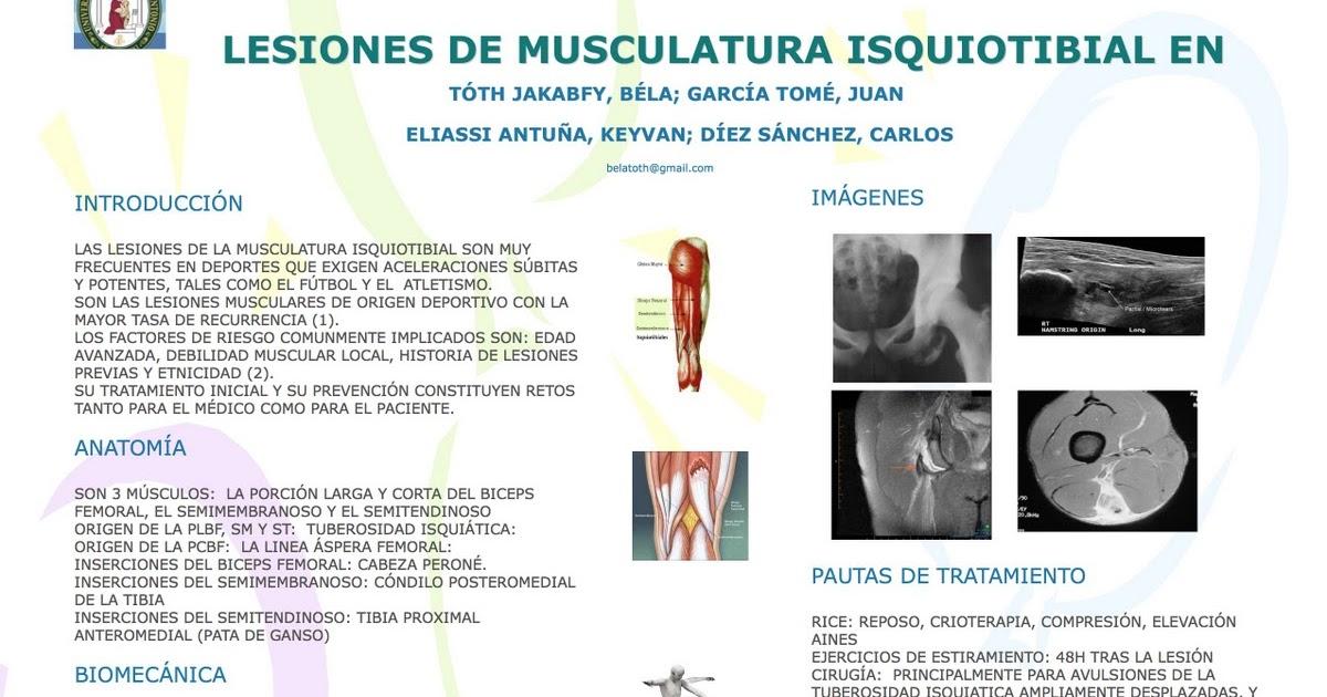Lesiones de musculatura isquiotibial en deportistas: prevención y ...