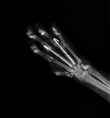agujas en fractura de metacarpianos en gato