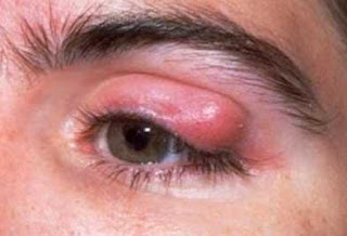 Symptoms of Dust Mites, Allergies, and the Adverse Health Effects of DMA's