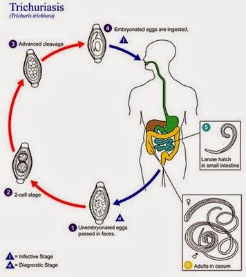 Cara Mengobati Penyakit Trikuriasis