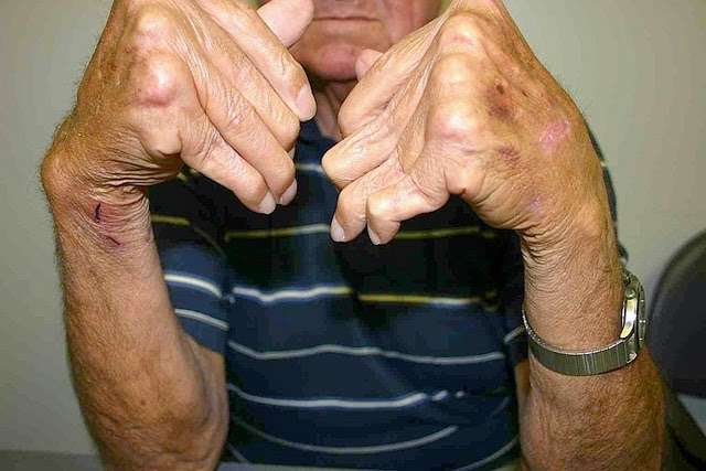 Photograph of male rheumatoid arthritis sufferer