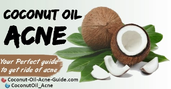 Coconut oil acne