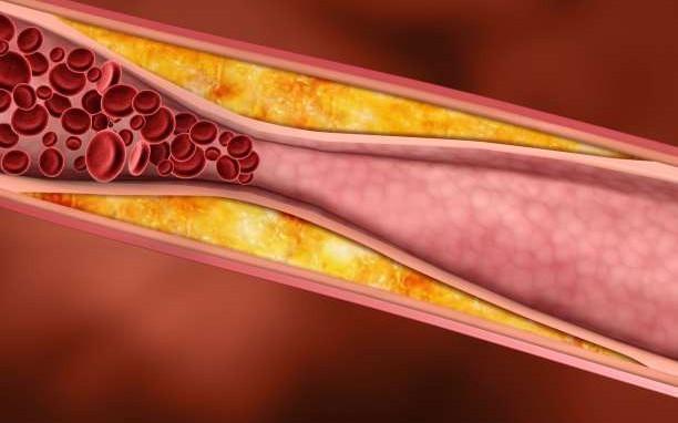 Τέλος εποχής για την χοληστερίνη