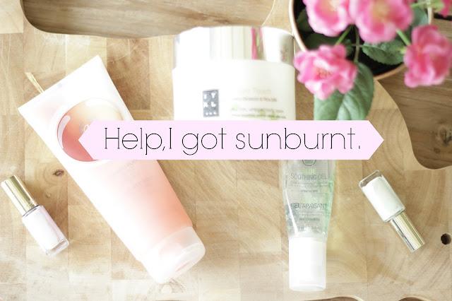 tips verbrande huid zon