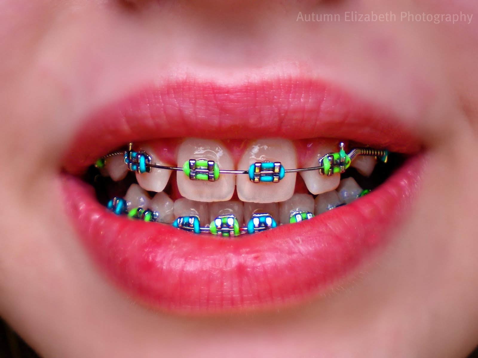 Braces Colors White