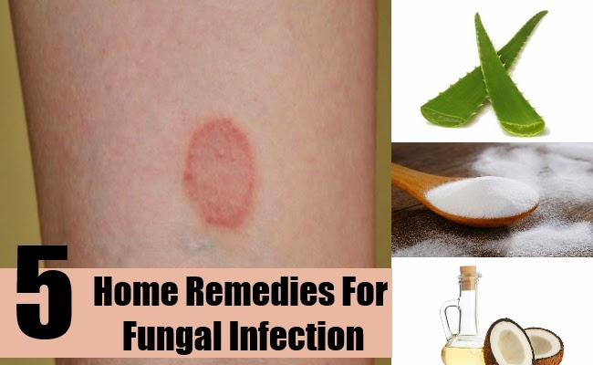 Fungal Infection On Hands Natural Remedy