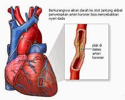 gambar peyakit jantung koroner