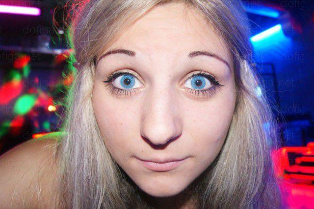 10 Gambar Bangang Remaja Cantik Sebelum VS Selepas Pembedahan Bibir