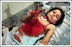 Imágenes del Genocidio en  Gaza