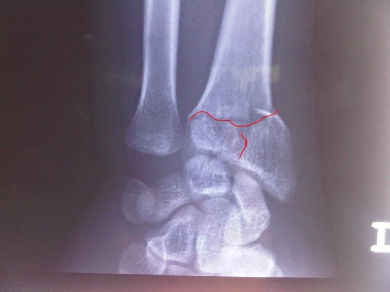patah tangan